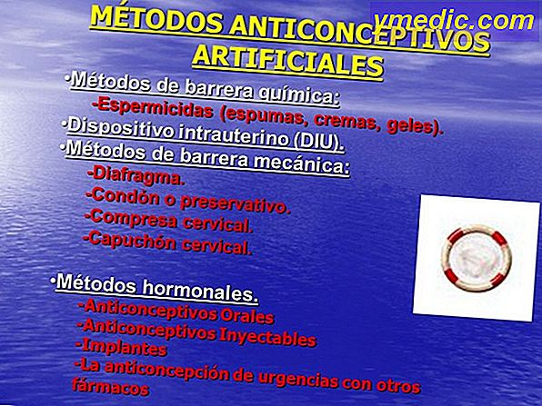 Anticoncepción: métodos de barrera fiable son