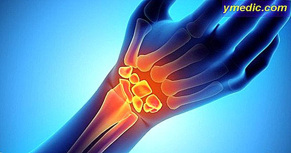 5 Natural Remedies for Carpal Tunnel Syndrome