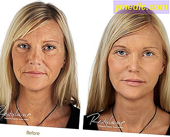 Rimpel injecties: Botox of hyaluronzuur